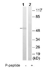 Western blot - TUBA1 + TUBA3 + TUBA4 (phospho Y272) antibody (ab111592)