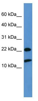 Western blot - RPS27A antibody (ab111598)