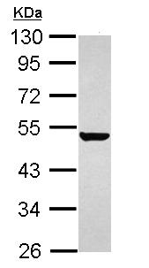 Western blot - Keratin 36 antibody (ab111599)