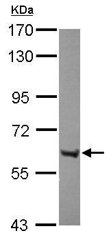 Western blot - ZNF642 antibody (ab111603)