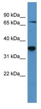 Western blot - SH3BP5 antibody (ab111607)