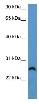 Western blot - FRG1 antibody (ab111616)
