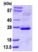 SDS-PAGE - NNT1 protein (ab111634)