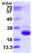 SDS-PAGE - Cofilin 2 protein (ab111635)