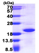 SDS-PAGE - CRCP protein (ab111636)