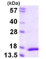 SDS-PAGE - MYL5 protein (ab111638)