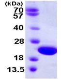 SDS-PAGE - CRYGD protein (ab111649)