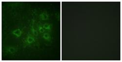 Immunocytochemistry/ Immunofluorescence - Synapsin I (phospho S605) antibody (ab111687)