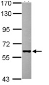 Western blot - GHDC antibody (ab111705)