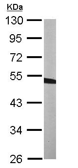 Western blot - BCKDH kinase antibody (ab111716)