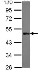 Western blot - KRT31 antibody (ab111730)