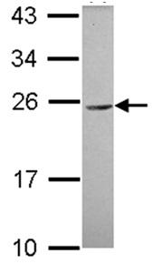 Western blot - CEACAM3 antibody (ab111736)