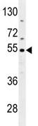 Western blot - CES2 antibody (ab111751)