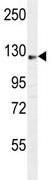 Western blot - AASS antibody (ab111754)