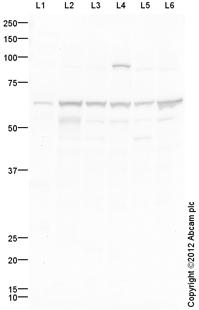 Western blot - Anti-Involucrin antibody (ab111781)