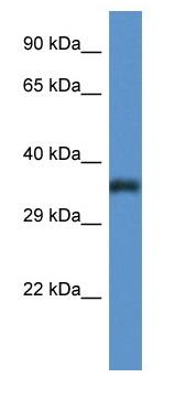 Western blot - PIGC antibody (ab111812)