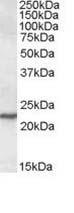 Western blot - SAR1 antibody (ab111814)