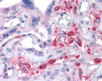 Immunohistochemistry (Formalin/PFA-fixed paraffin-embedded sections) - xCT antibody (ab111822)