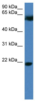 Western blot - Fbx32 antibody (ab111836)