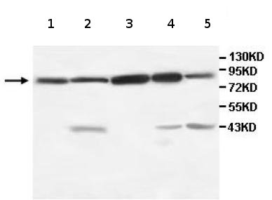 Western blot - TRIM3 antibody (ab111840)