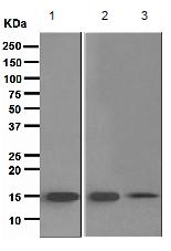 Western blot - TRAPPC2 antibody [EPR3401] (ab111848)