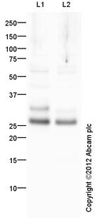 Western blot - Anti-Prostate Specific Antigen antibody (ab111858)