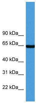 Western blot - Asparagine synthetase antibody (ab111873)