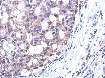 Immunohistochemistry (Formalin/PFA-fixed paraffin-embedded sections) - Spermidine synthase antibody (ab111884)