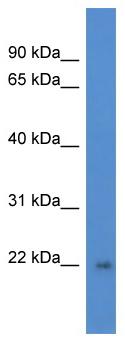 Western blot - DGCR6L antibody (ab111902)