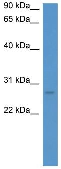 Western blot - FRG1 antibody (ab111937)