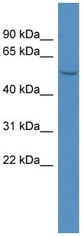Western blot - MAGEL2 antibody (ab111954)