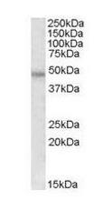 Western blot - Thrombin Receptor antibody (ab111976)