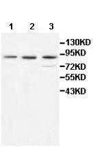 Western blot - P5CS antibody (ab111977)
