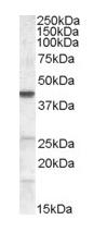 Western blot - Abhd5 antibody (ab111984)