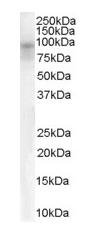 Western blot - DPP10 antibody (ab111985)