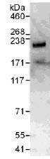Immunoprecipitation - RFX7 antibody (ab111988)
