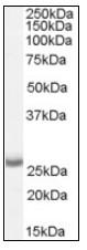 Western blot - APH1a antibody (ab111992)