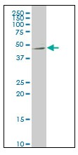 Western blot - Netrin G2 antibody [4F11] (ab111994)