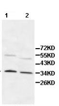 Western blot - PDCL antibody (ab112010)
