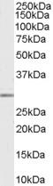 Western blot - MMP7 antibody (ab112017)