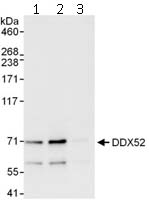 Immunoprecipitation - Anti-DDX52 antibody (ab112027)
