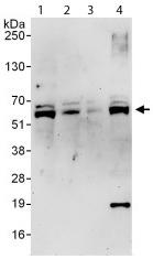 Western blot - PTOP antibody (ab112050)