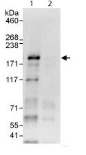 Western blot - Anti-ZBTB38 antibody (ab112051)