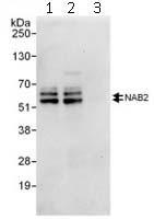 Immunoprecipitation - Nab2 antibody (ab112056)