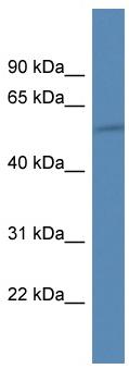 Western blot - HIATL1 antibody (ab112083)
