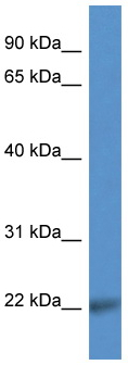 Western blot - CD99L2 antibody (ab112086)