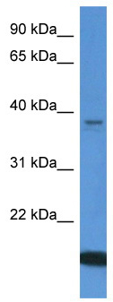 Western blot - WDR54 antibody (ab112087)