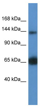 Western blot - RAPGEF2 antibody (ab112093)