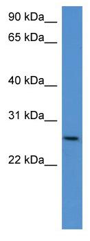 Western blot - CHODL antibody (ab112103)