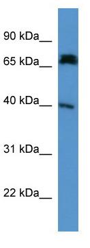 Western blot - DCDC2 antibody (ab112109)